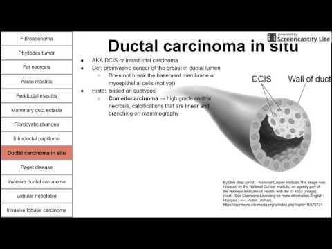 Ascaridioza | pcmaster.ro