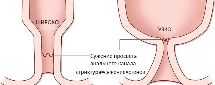 condyloma acuminata man papillomatosis and acanthosis
