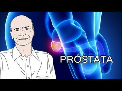 Prostatita cronica cu simptome de calcificare - Cancer de prostata urinar sangue