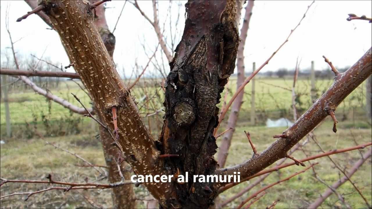 Cancer la copaci, Tratamentul sulitelor parazite