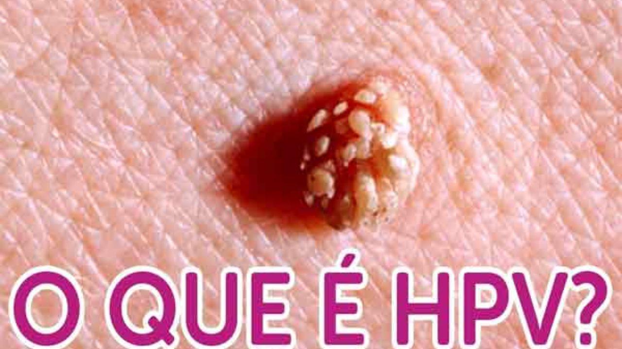 Papiloma ano sintomas Infecţia cu virusul HPV şi riscul de cancer