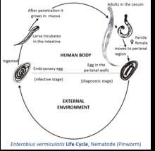 diagnosis b80 enterobiasis