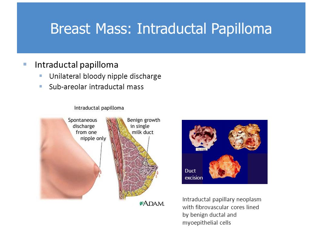 ductal papilloma pain