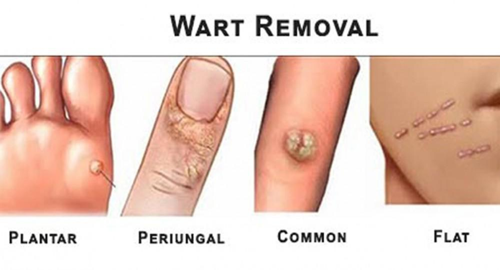 warts cancer treatment smoothie pentru detoxifiere