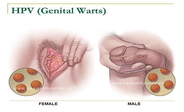hpv virus genital warts papilloma labbra cane