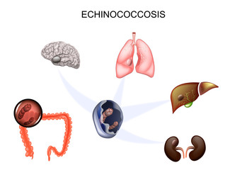 Echinococcus: Anticorpi IgG - Synevo