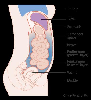 peritoneal cancer bloating papilomul nu se vindecă