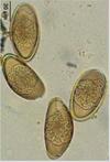 Is oxyuris equi, Ciclo biologico de oxyuris equi, Les maternelles papillomavirus