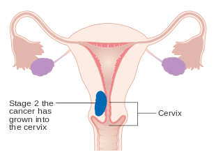 Endometrial cancer hpv