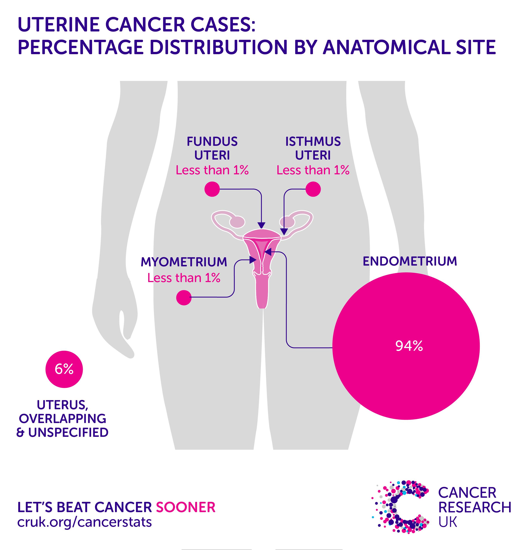 endometrial cancer incidence pentru a scăpa de paraziții copiilor