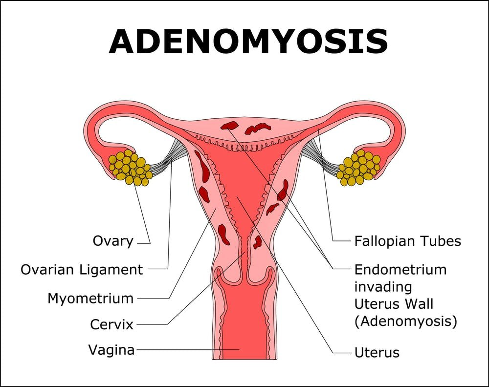 endometrial cancer or adenomyosis