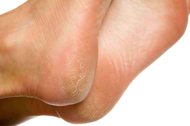 human papillomavirus warts on feet