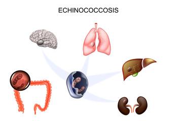 helmintele sunt simptome la plămânii copiilor