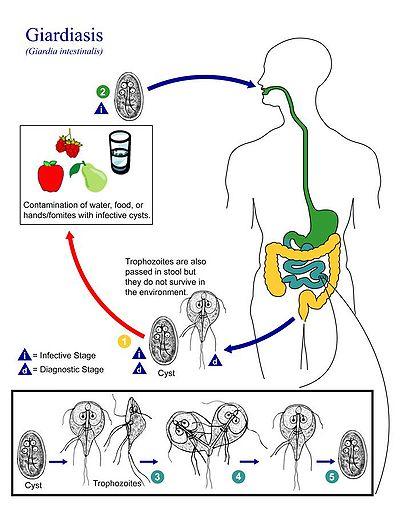 giardia q es suplimente de detoxifiere fitness de viață
