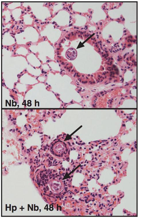 helminth lung infection exkretionsorgane plathelminthen
