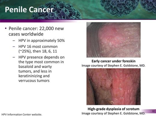 human papilloma viruses found