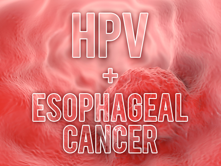 hpv and esophageal cancer que significa la oxiuriasis