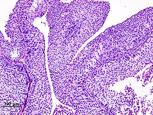 Hpv oropharyngeal cancer pathology outlines. Respiratory papillomatosis pathology outlines