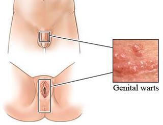 Virus del papiloma humano en hombres sin verrugas Hpv en mujeres verrugas