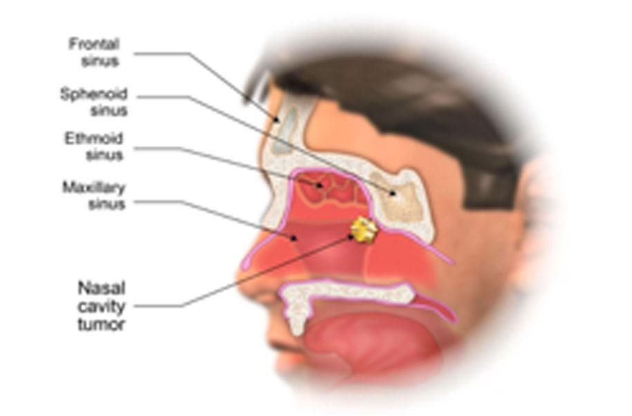 Hpv in nasal cavity.