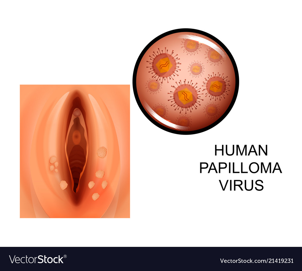 hpv virus in woman
