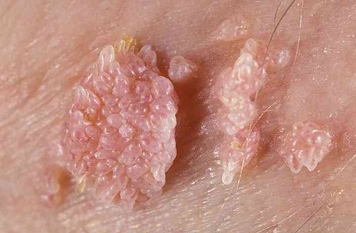 hpv virus lecenje helminthic therapy for psoriasis