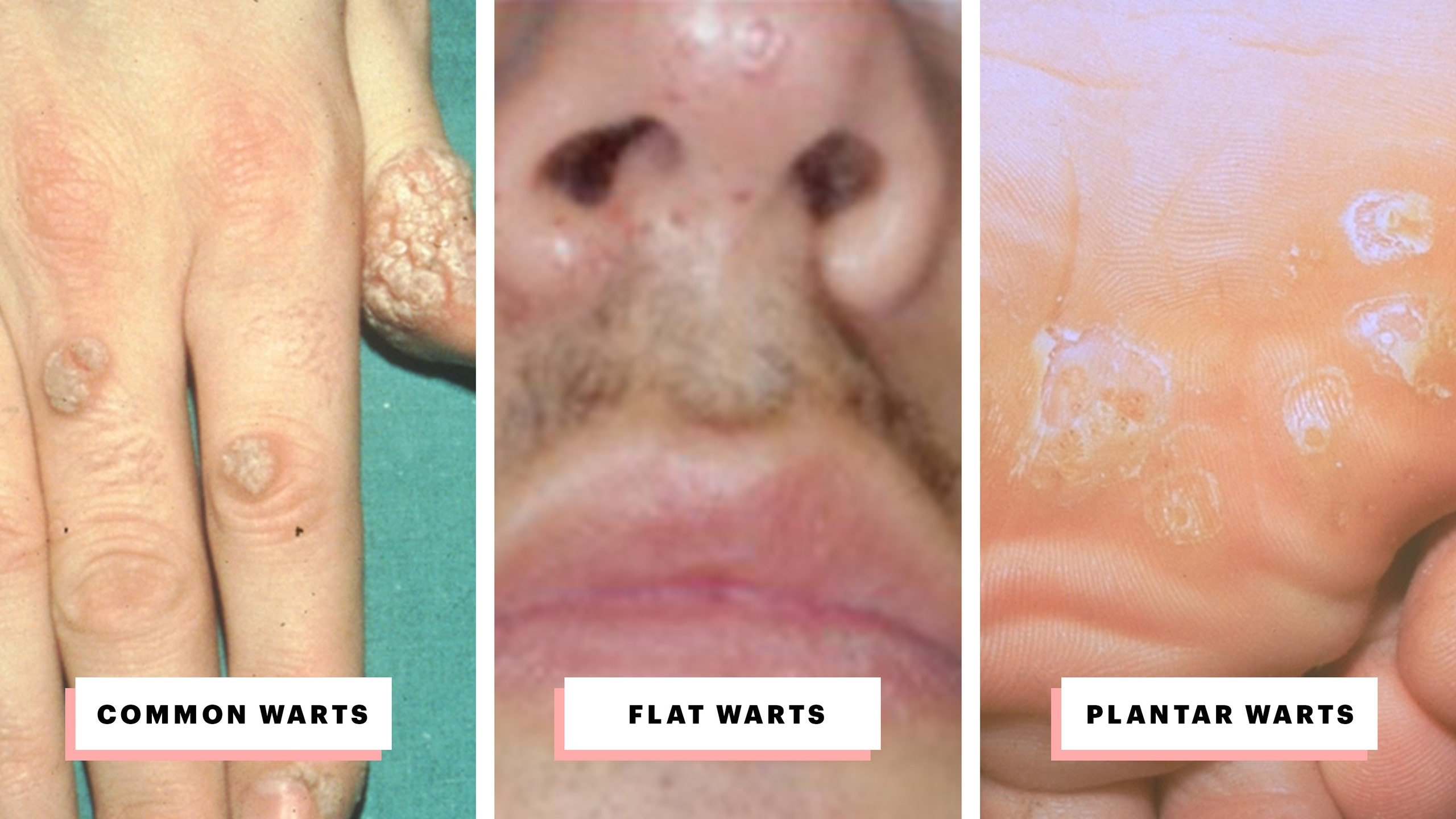 hpv warts last how long