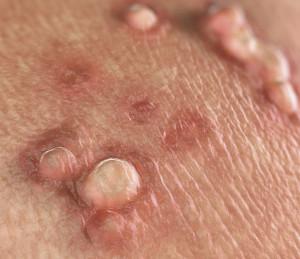 Hpv virus ansteckung Virusul HPV. Tipuri de leziuni HPV: Diagnostic, tratament si prevenire