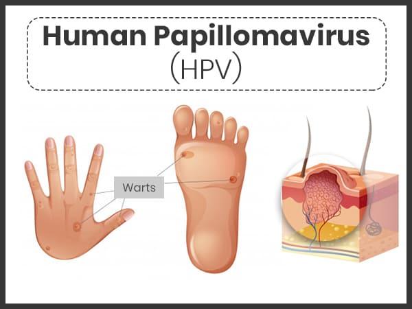papillomavirus et mycose definește helmintologia