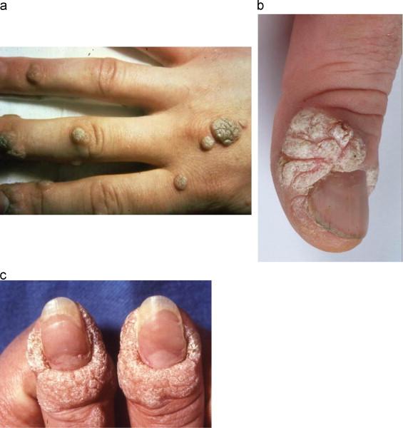 human papillomavirus infection of the skin