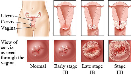 simptome microparasite