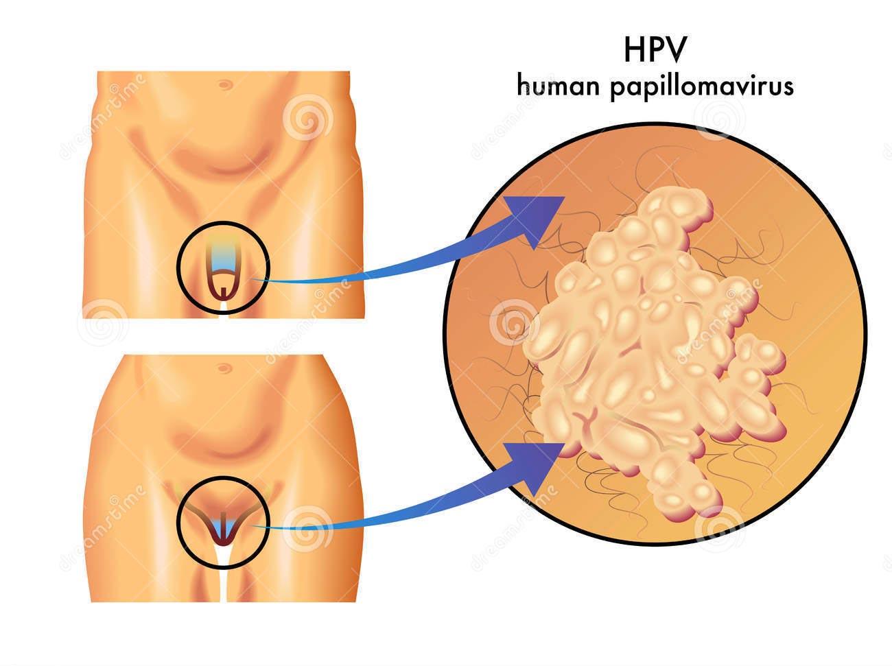 taur familie hpv virus at 35