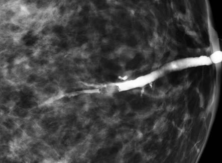 Articulații papilloma Juvenile intraductal papilloma