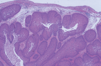 inverted papilloma