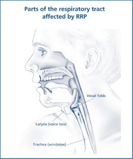 laryngeal papillomatosis steroids