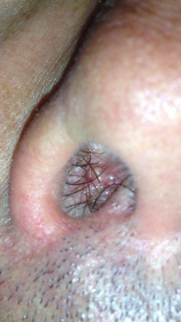 lesione papilloma virus