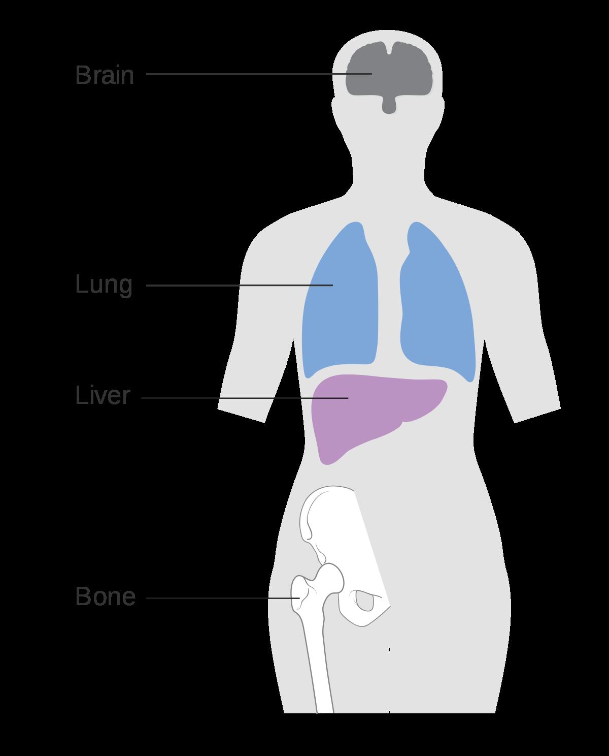 Metastatic cancer glucose. Avantajele endoparaziților față de epoparaziți