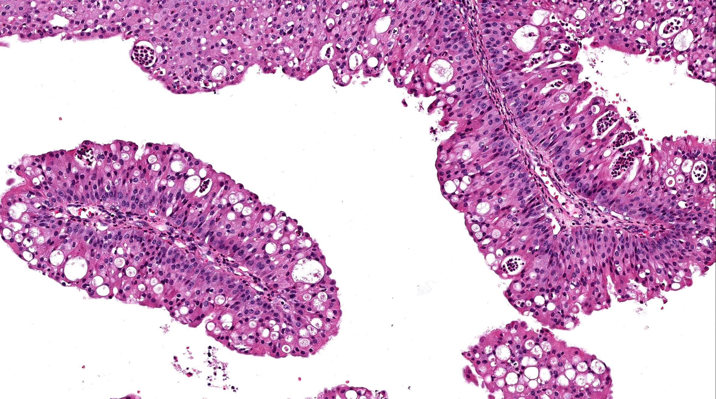 nasal inverted papilloma pathology