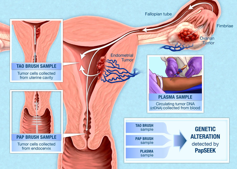 ovarian cancer what is it