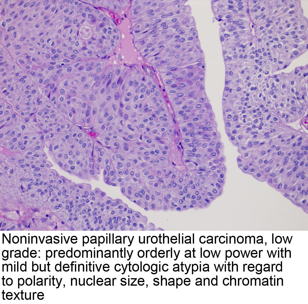papillary urothelial neoplasia