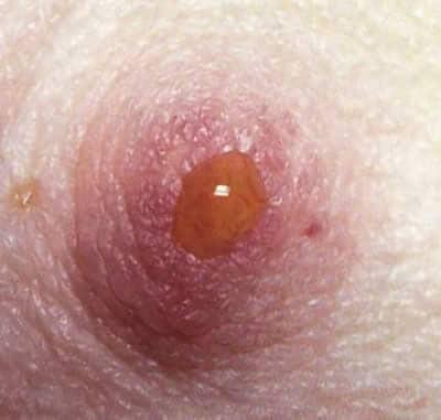 cancer de hodgkin en ninos sintomi hpv in bocca