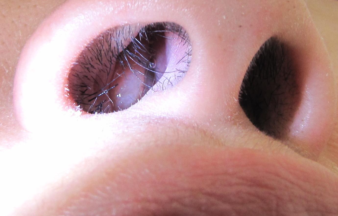 Papilloma invertito del naso