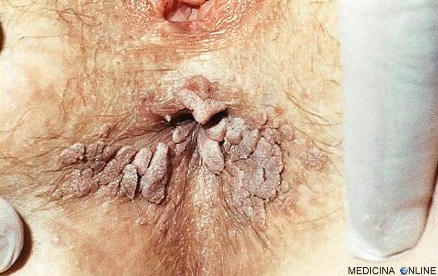Infezione papilloma virus sintomi - pcmaster.ro