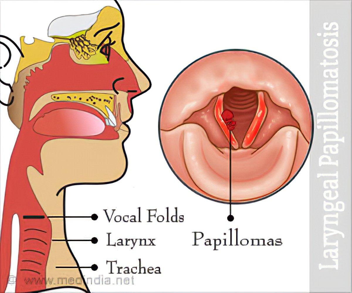 Multiple papilloma of larynx. Laryngeal papillomatosis utah