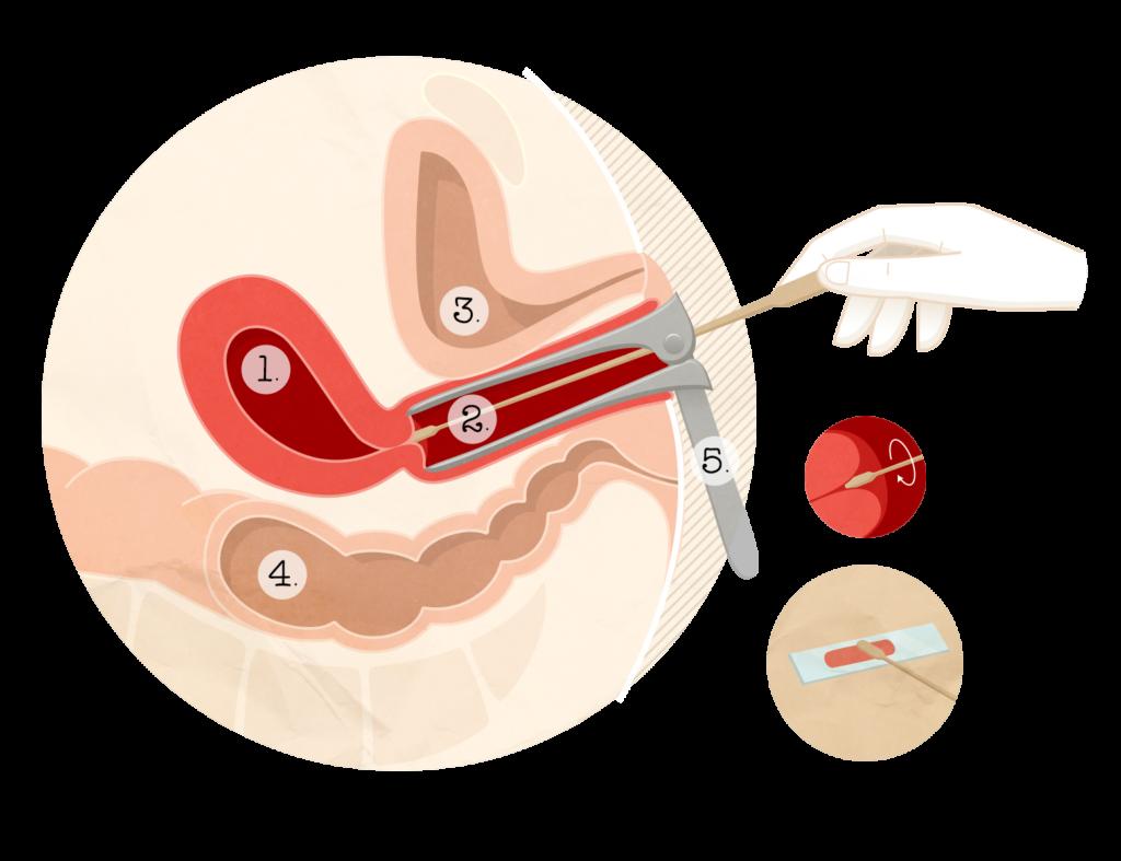 Helmintox chez la femme enceinte. Helmintox sirop pret
