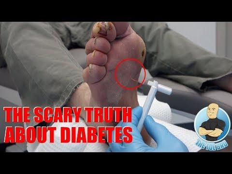 Prostatite cause le sexe anal - Papillomavirus maladie venerienne