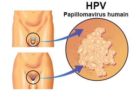Human papillomavirus infection symptoms in mouth
