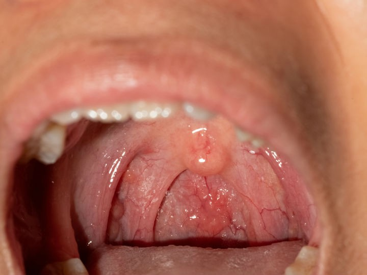StandardeDeCodificare, Squamous papilloma of uvula icd 10 Squamous papilloma uvula icd 10