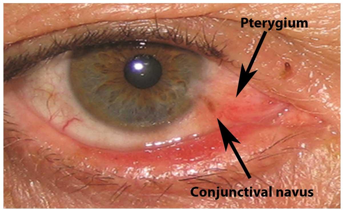 Papilloma virus oculare