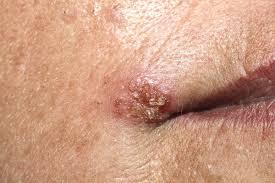 ce imunomodulatoare să ia cu condiloamele cancer sarcoma tratamento
